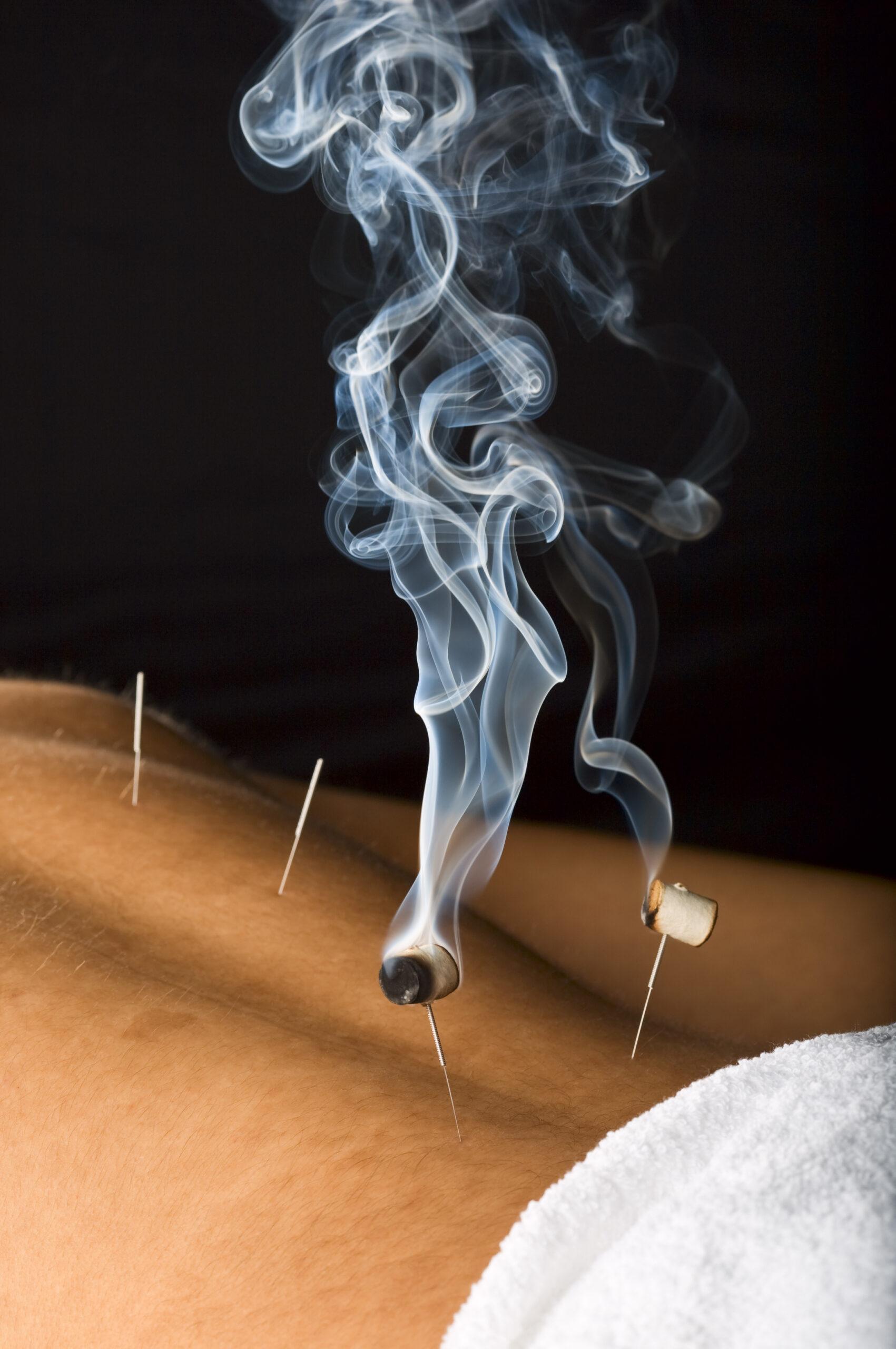 Traditionelle Chinesische Medizin Praxis Lucas in Husum